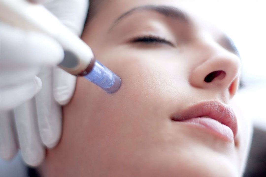 Mesotherapy-treatment.jpg